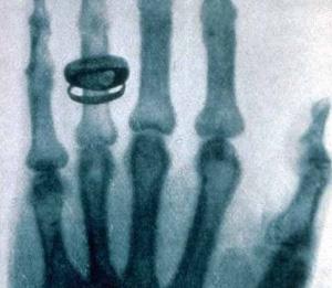 rentgen-2